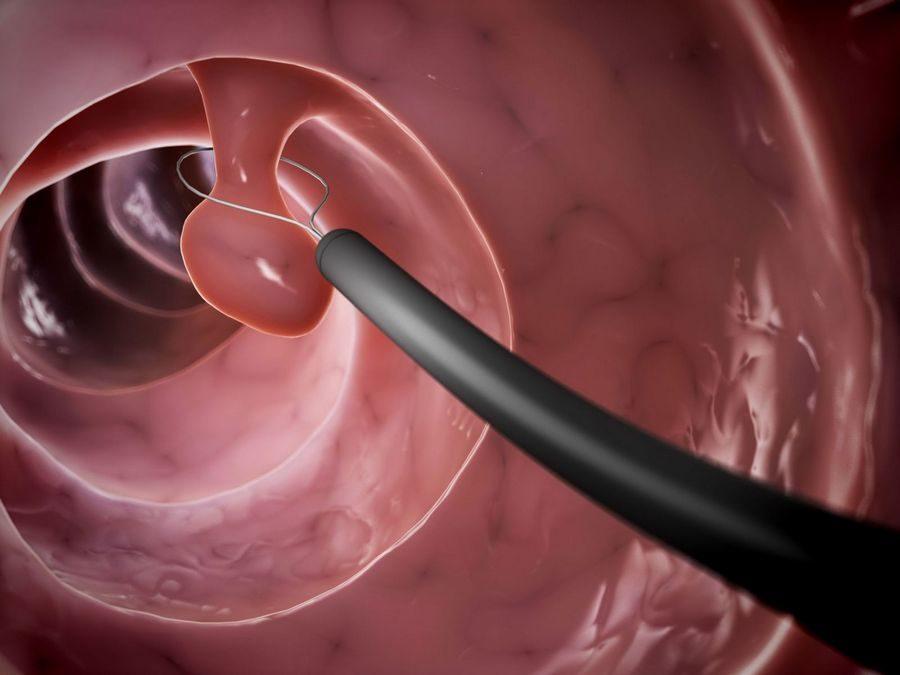 Рак кишечника колоноскопия